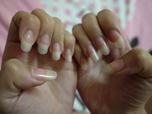Що робити, щоб нігті росли швидше?