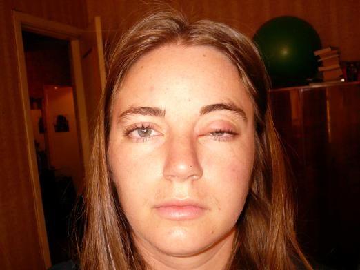 Что делать, если опух глаз?