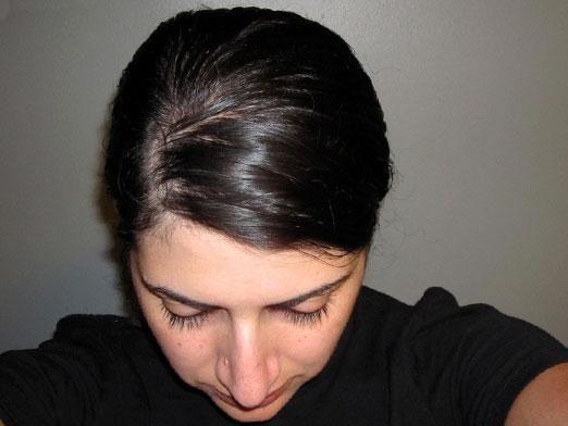 Что делать, если волосы быстро жирнеют?