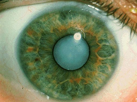Що таке катаракта?