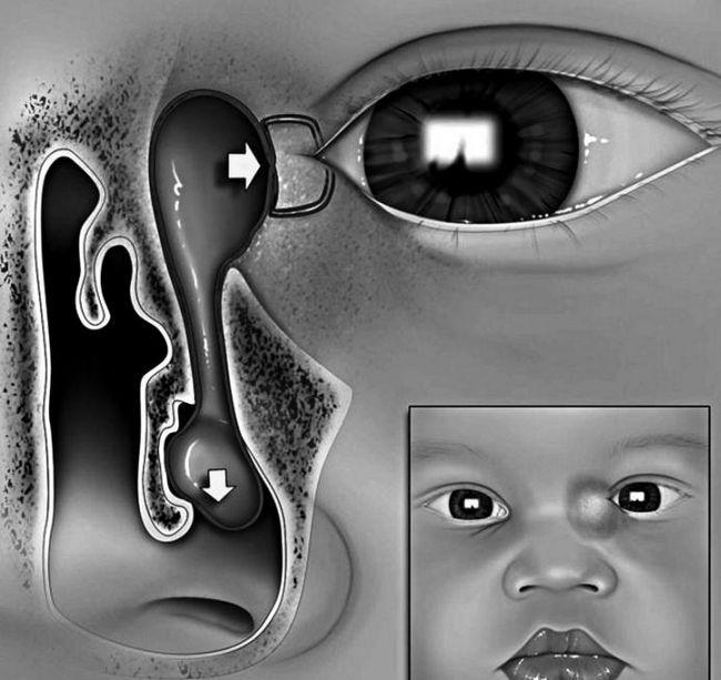 дакріоцистит новонароджених симптоми