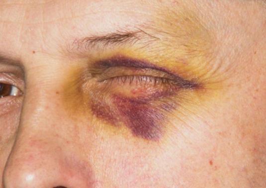 Как избавиться от синяка под глазом?