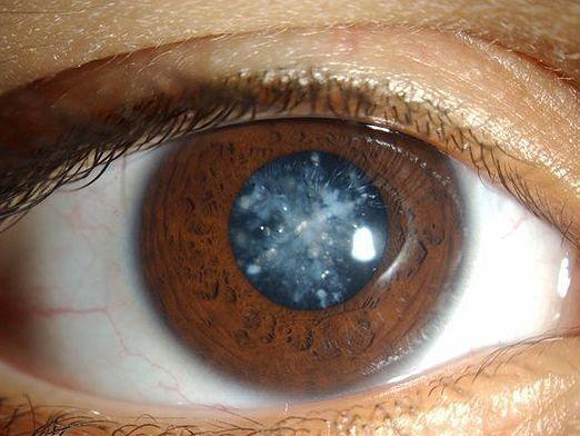 Как лечить катаракту?
