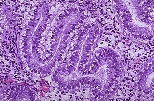 як наростити ендометрій