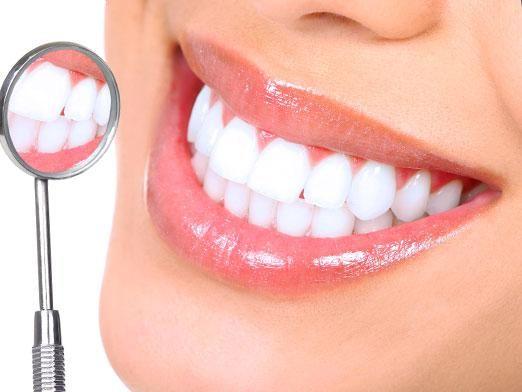 Як відбілити зуби за 1 день?