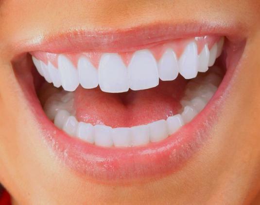 Как сделать все зубы?