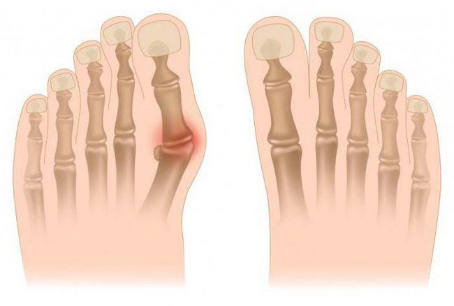 як прибрати шишки на ногах