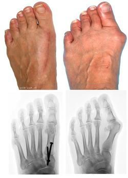 шишки на ногах операція