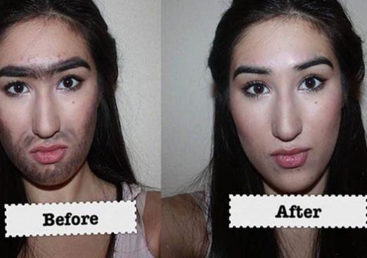 Как удалить волосы на лице?
