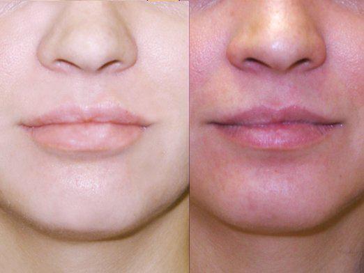 Як зменшити губи?