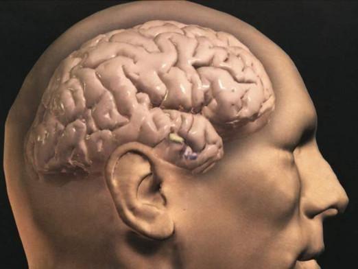 Как выглядит мозг?