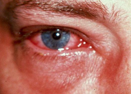 Как вылечить глаза?