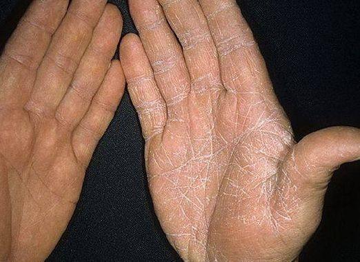 Как вылечить грибок на руках?