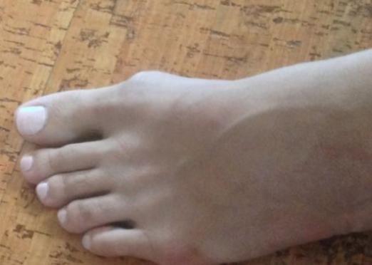Как вылечить косточку на ноге?