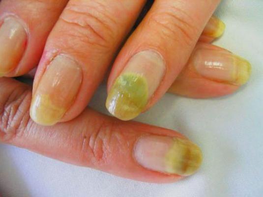 Как вылечить ногти?