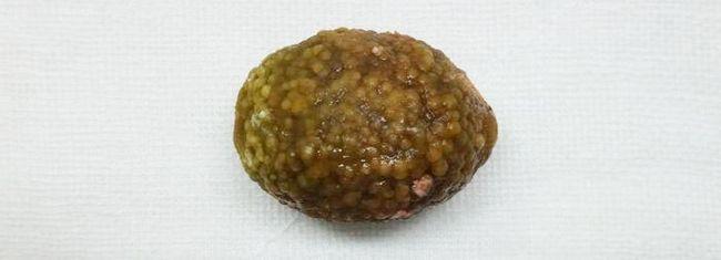 Приклад великого каменю