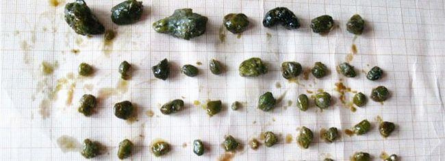 різновиди каменів