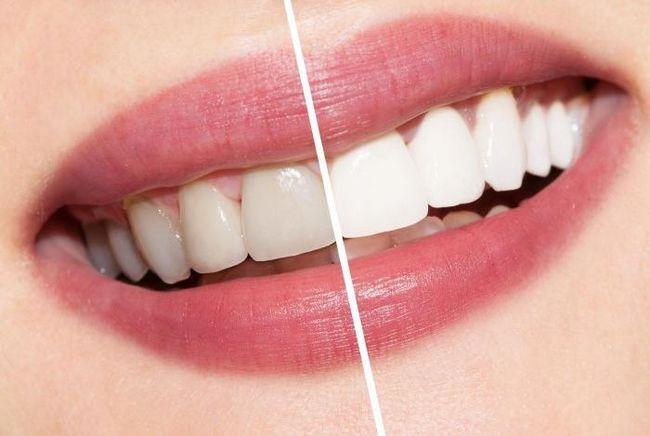 відбілювання зубів маслом чайного дерева відгуки стоматологів