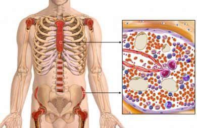 мієломна хвороба стадії