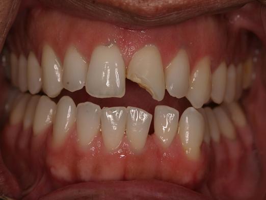 Відколовся зуб, що робити?