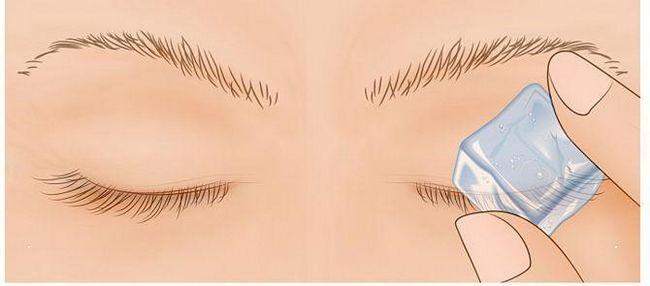 Чому часто сіпається ліве око