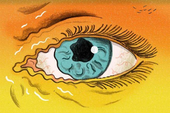 Чому смикається ліве око, прикмета