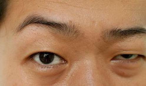 смикається нижню повіку правого ока