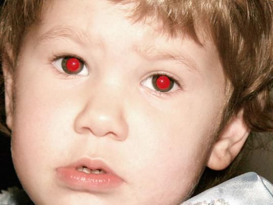 Почему глаза красные?