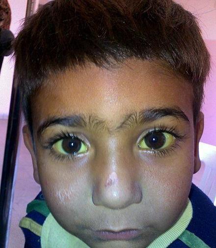 очі жовті