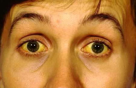 чому білки очей жовті