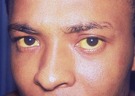 жовті очні білки