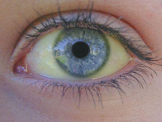 Чому очі жовті?