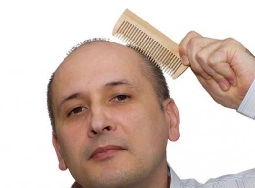 Почему лысеют?