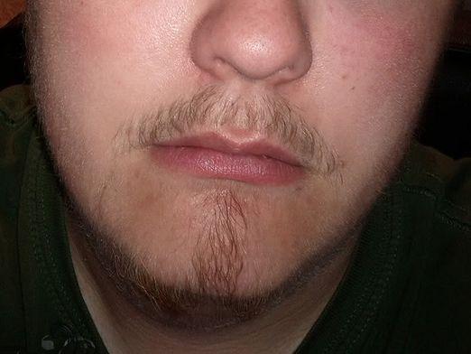 Почему не растет борода?