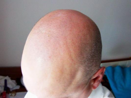 Почему не растут волосы?