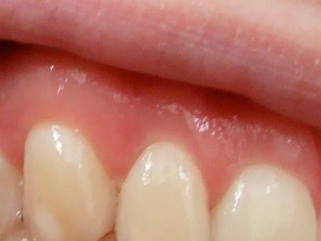 флюс після видалення зуба