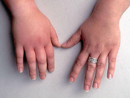 Почему опухают руки?