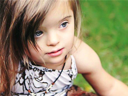 Почему рождаются дети дауны?