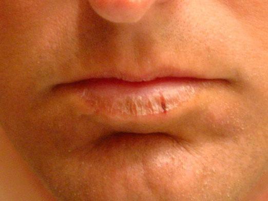 Почему сохнут губы?