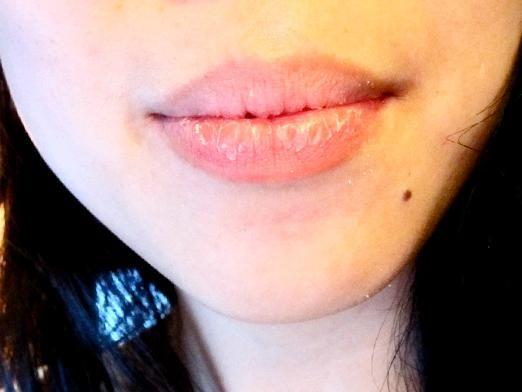 Почему трескаются губы?