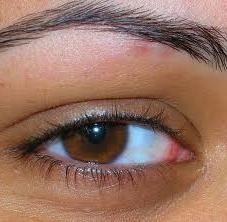 причина червоних очей