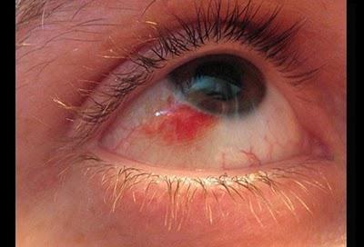що робити якщо червоні очі
