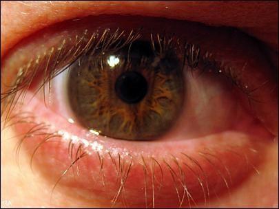 що робити якщо очі червоні