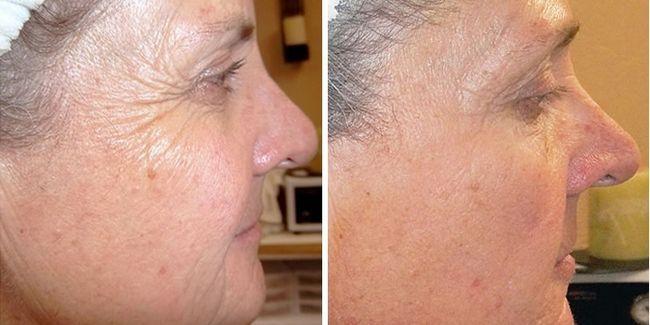 Шкіра до і після ретиноєвої пілінгу