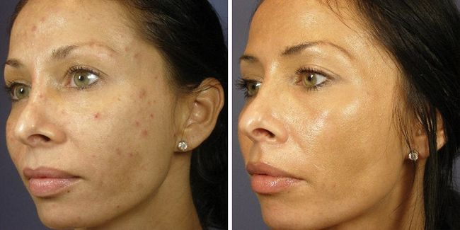 Особа до і після ретиноєвої пілінгу