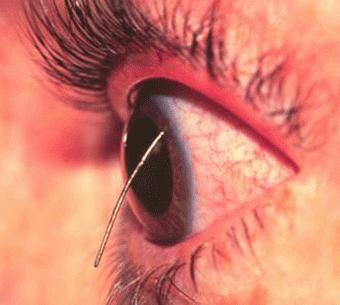 травма ока лікування
