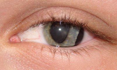 травма ока перша допомога