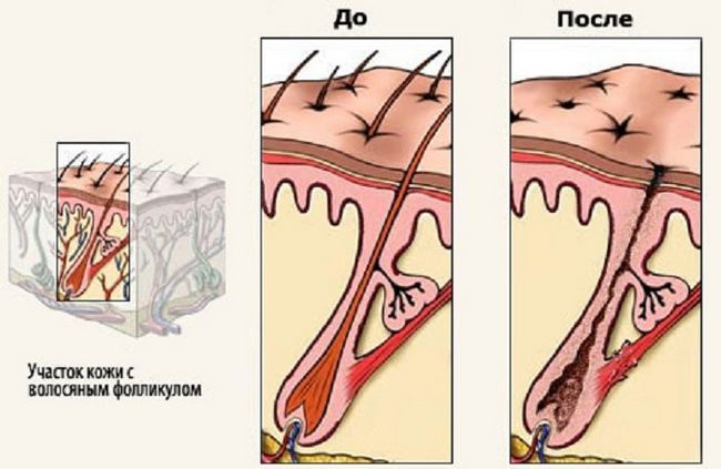 Лазерна епіляція: вплив на волосяний фолікул
