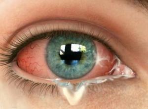 вірусний кон'юнктивіт симптоми хвороби профілактика і лікування