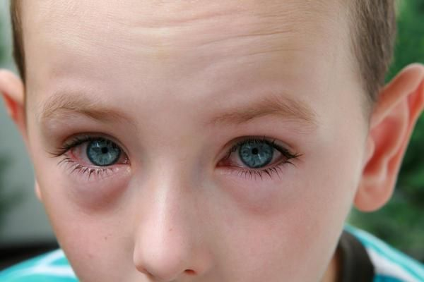 вірусний кон'юнктивіт лікування симптоми у дітей і дорослих